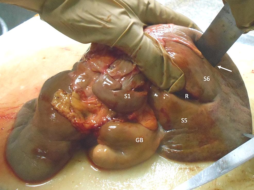 Segment-6-fissure