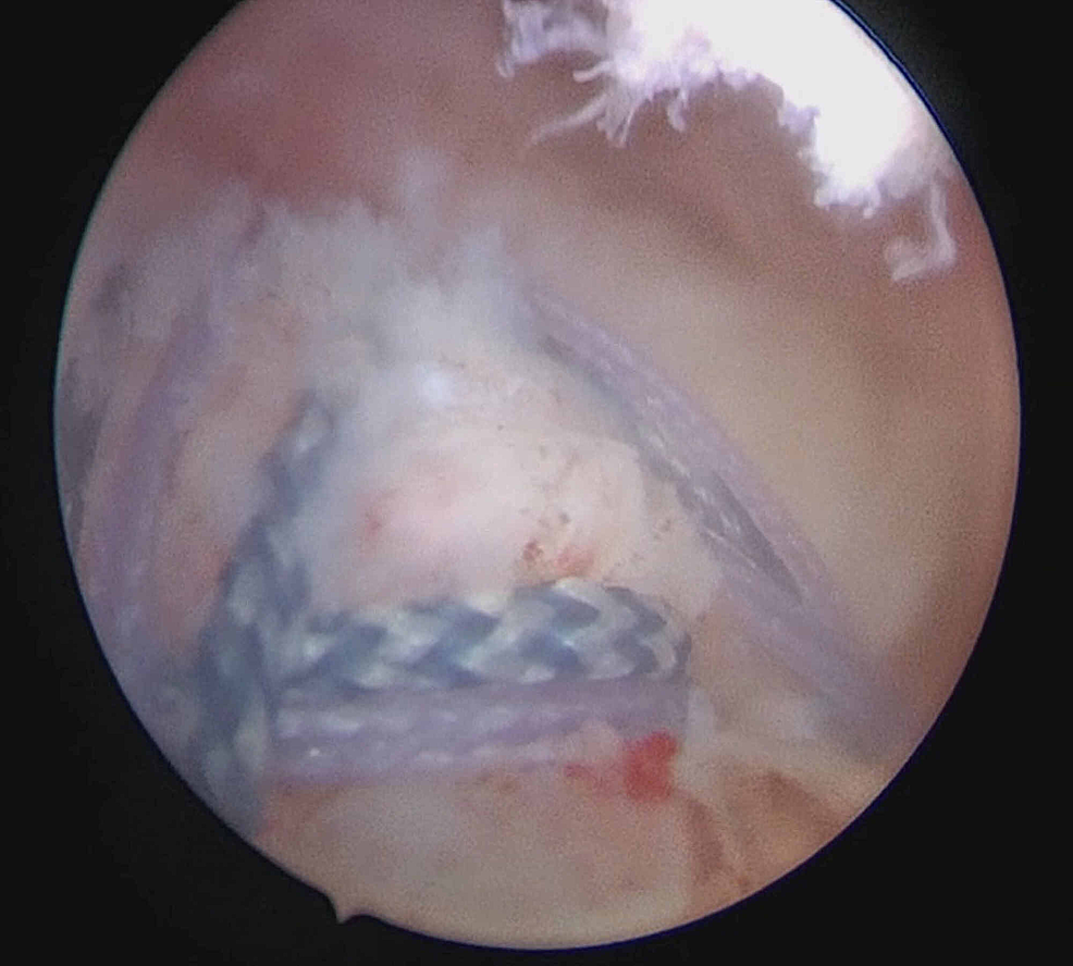 Subacromial-view-showing-the-final-repair-configuration-incorporating-both-the-full-thickness-and-partial-thickness-tears-via-criss-crossing-sutures-from-the-suture-anchor-systems.