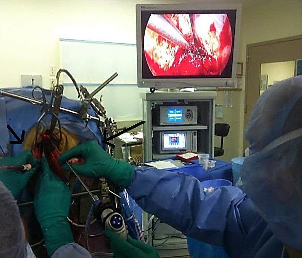 Dual-operator-approach-to-resection-using-endoscopy-and-laparoscopy.-