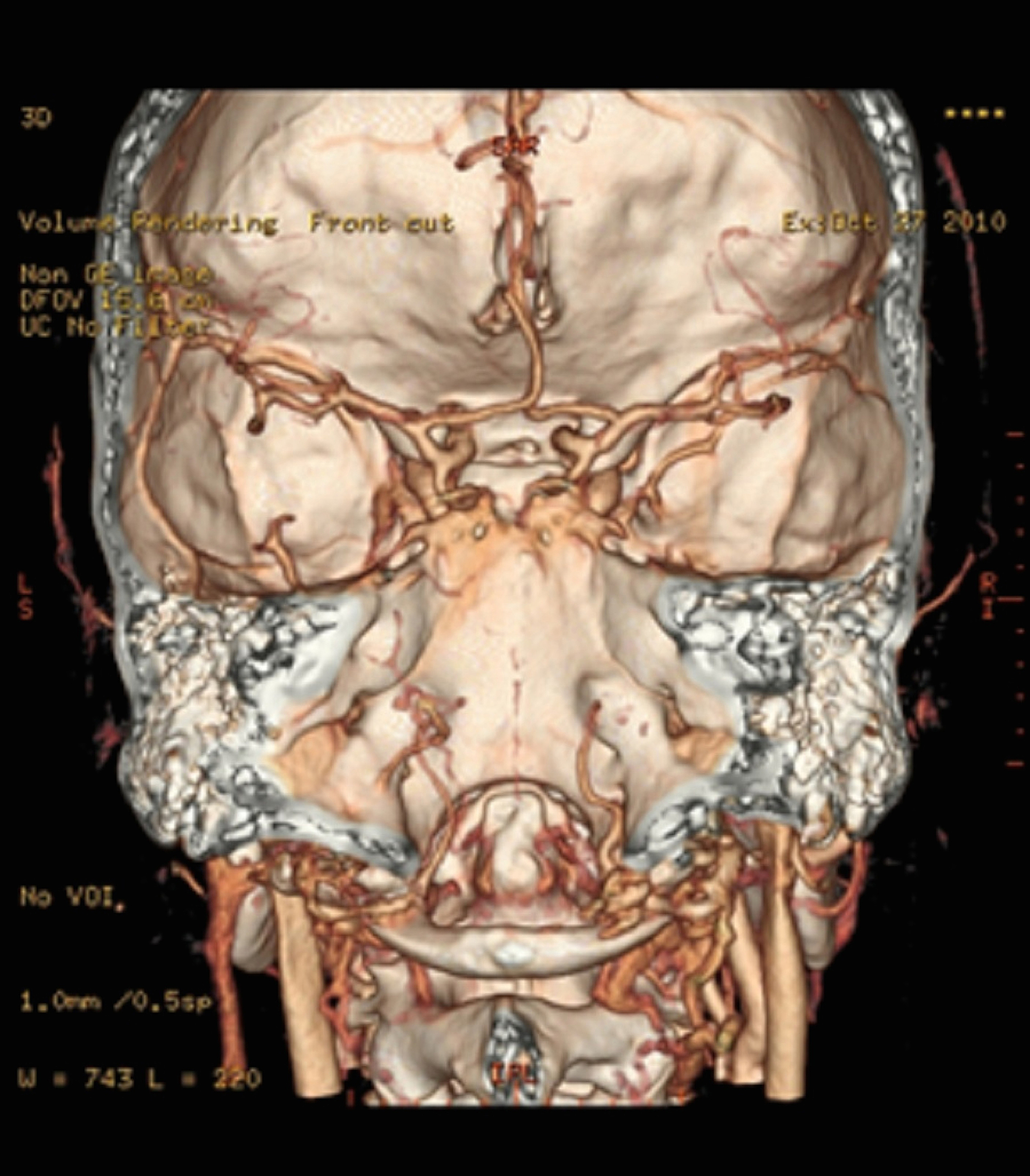 Cureus | Two Unusual Cases of the Posterior Cranial Fossa Blood Supply