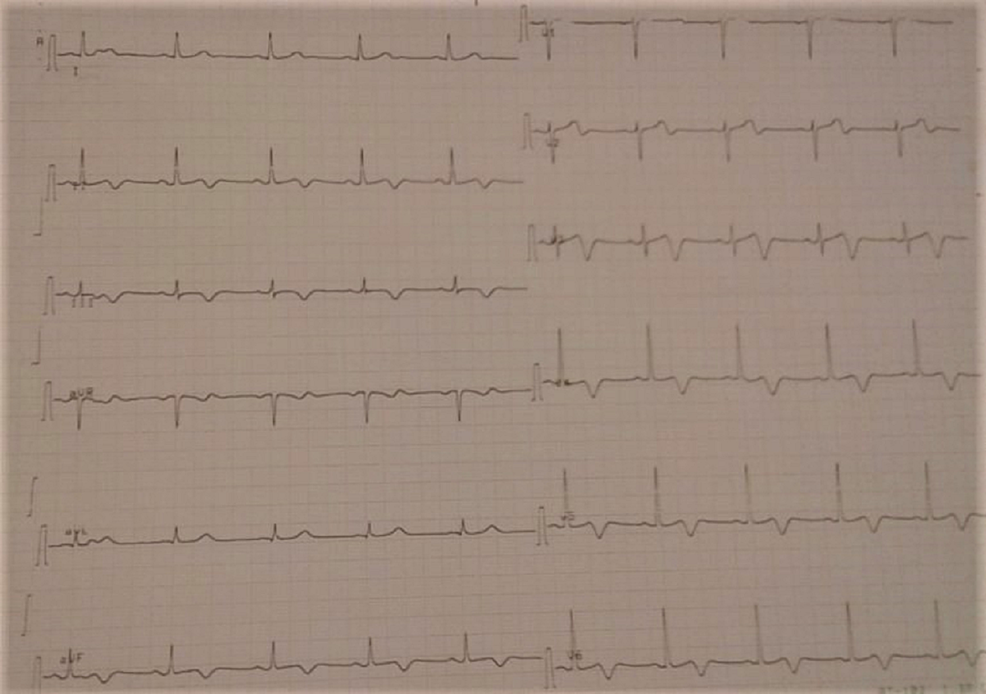 T-negative-waves-on-the-inferior-and-the-anterior-leads-on-EKG.