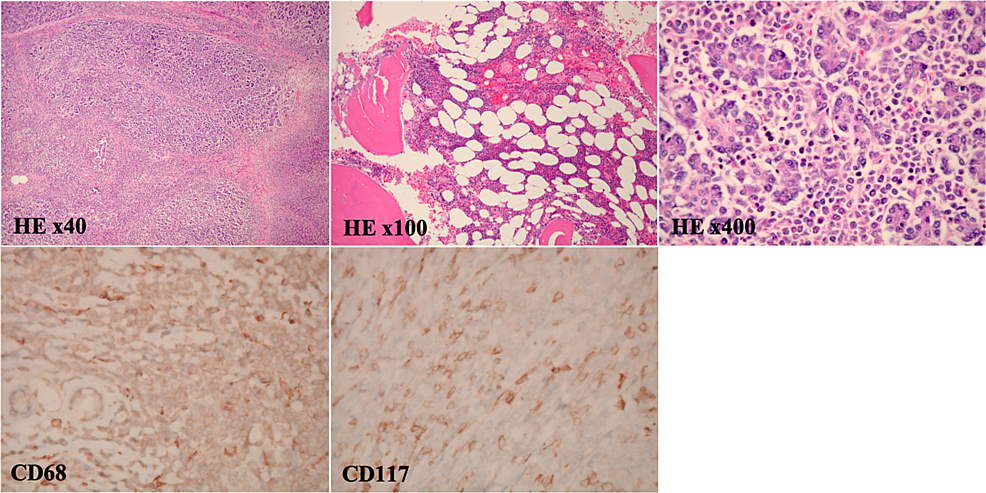 Pathology-provided-by-Whipple-resection-shows-a-pancreatic-myeloid-sarcoma.