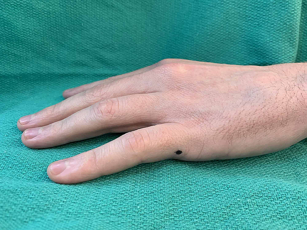 Example-of-the-fifth-digit-injection-site-on-the-ulnar-side-as-denoted-by-a-black-dot-(left-hand)