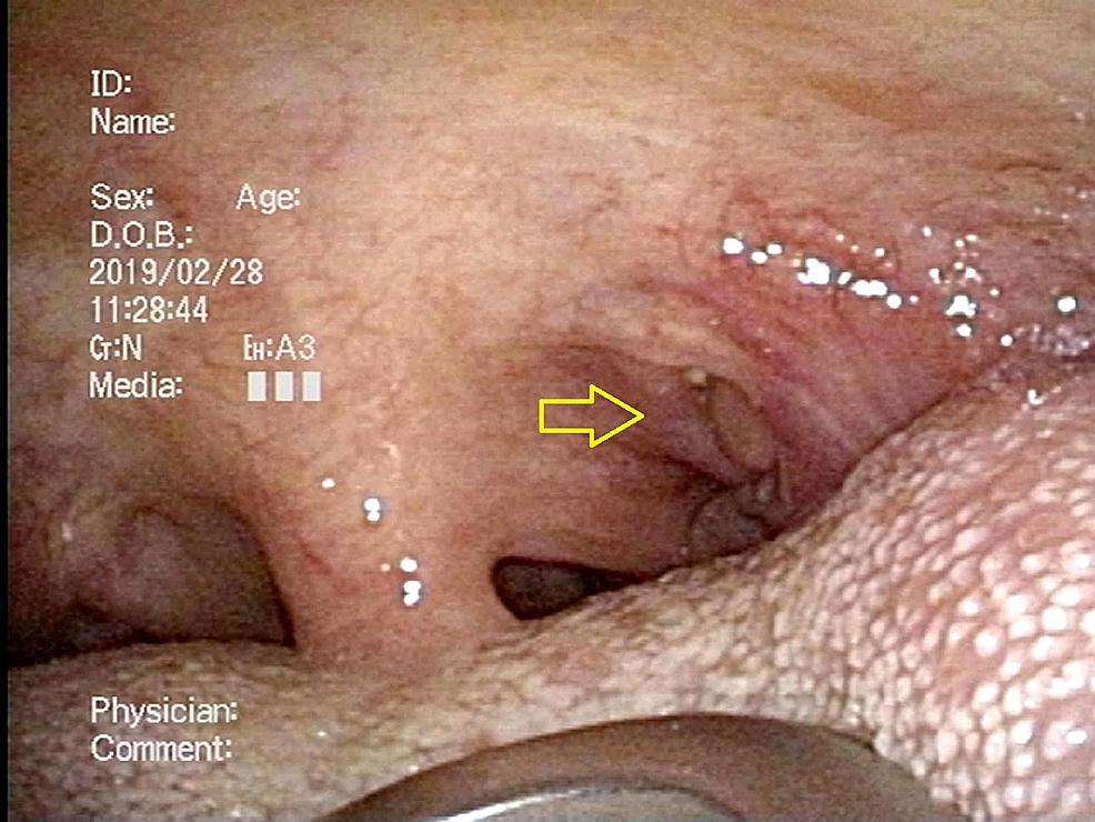 Case-2;-the-primary-site-of-the-fiberscopic-laryngoscopy