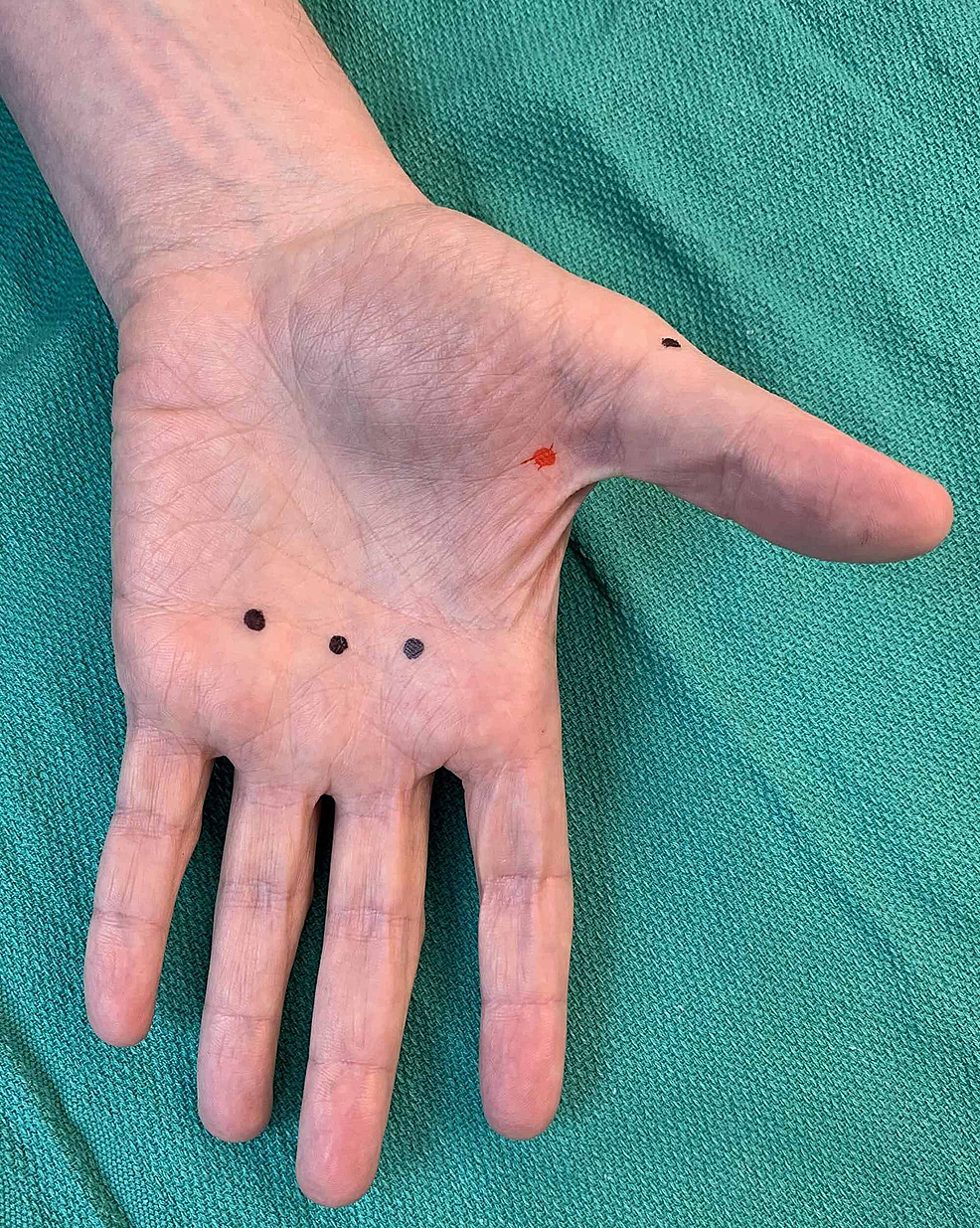 Example-of-correct-(black-dots)-and-incorrect-(red-dot)-placement-of-injections-in-relation-to-metacarpophalangeal-joints-(palmar-aspect-of-left-hand)