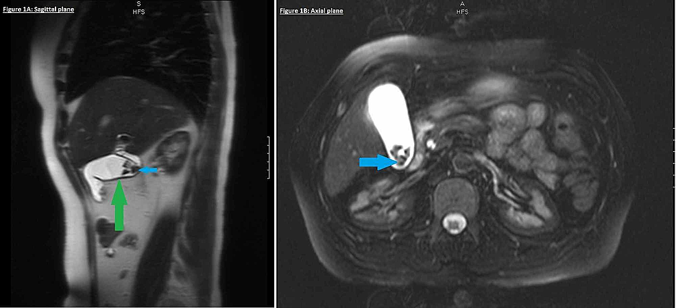 MRCP-(sagittal-and-axial-planes)-revealing-cholelithiasis-(blue-arrows)-with-mild-gallbladder-wall-thickening-(green-arrow)-indicative-of-chronic-cholecystitis