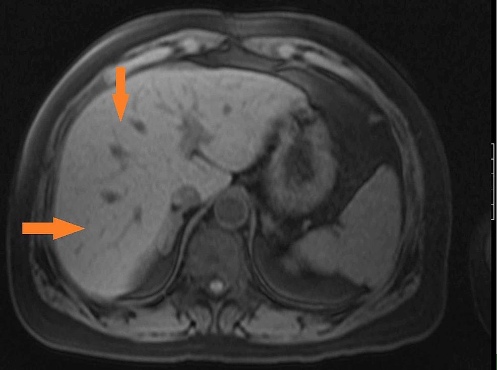 MRCP-showing-mild-hepatomegaly-with-hepatic-steatosis-(orange-arrows)