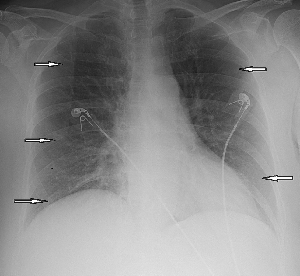 Chest-X-ray-showing-emphysematous-changes,-no-focal-consolidation-(arrows-pointing)