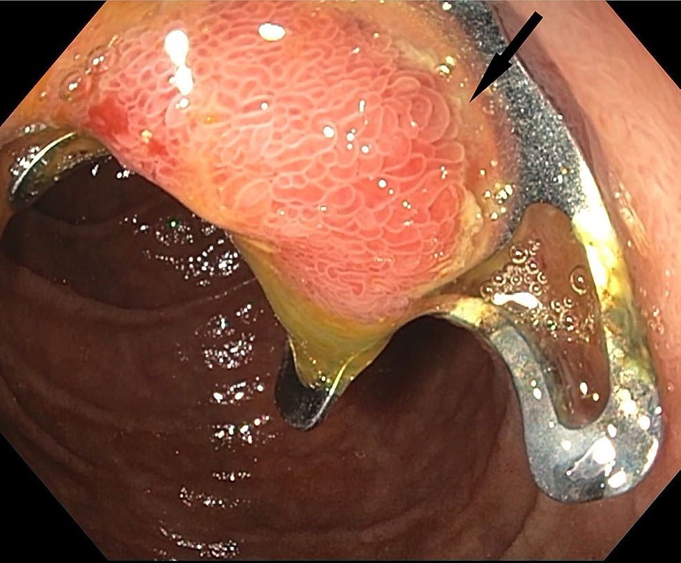 Repeat-EGD-showing-clip-deployed-over-the-ampulla