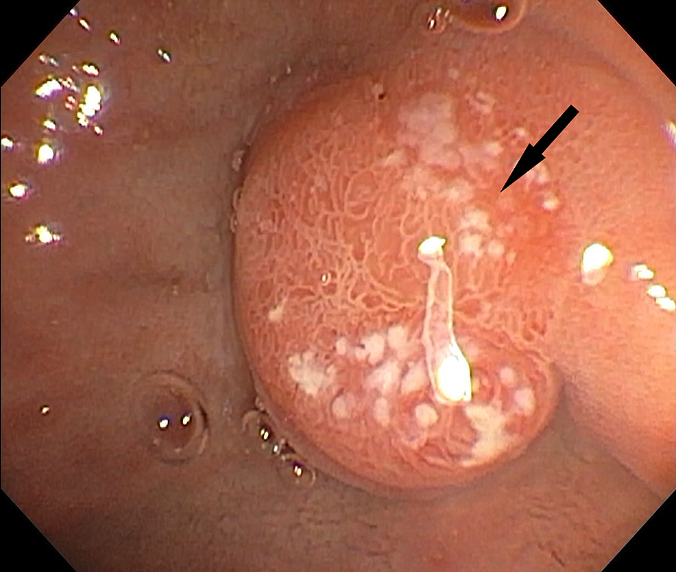 Repeat-EGD-one-month-later-showed-normal-duodenum-with-healed-ampulla-and-ulcer