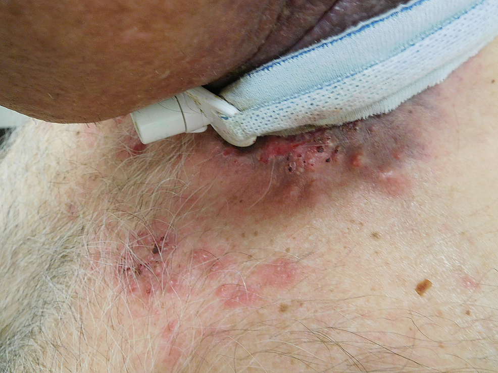 Left-sided-view-of-cutaneous-metastases-from-tonsillar-squamous-cell-carcinoma.
