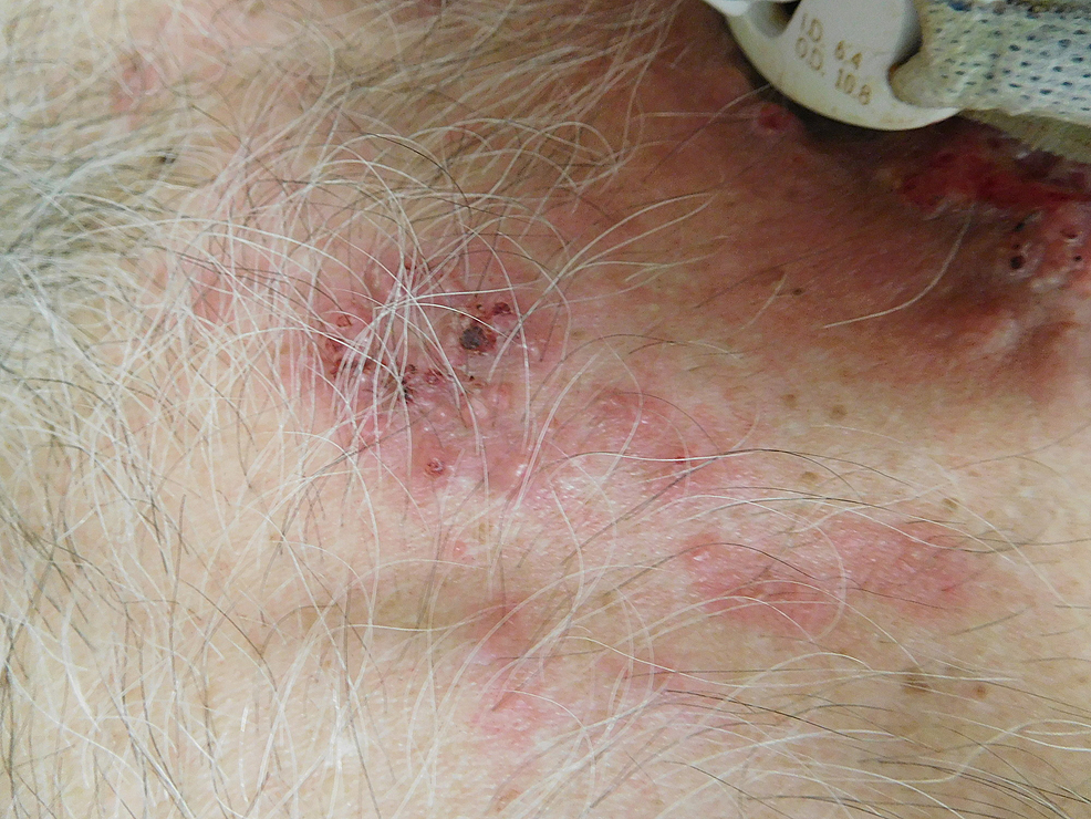 Closer-view-of-tonsillar-squamous-cell-carcinoma-cutaneous-metastases-on-the-proximal-chest.