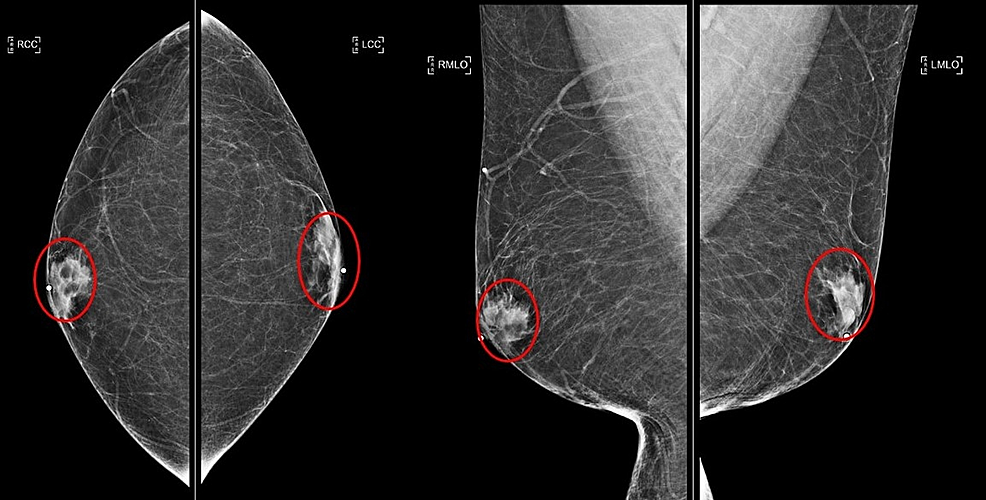 Initial-diagnostic-mammogram-for-right-breast-lump