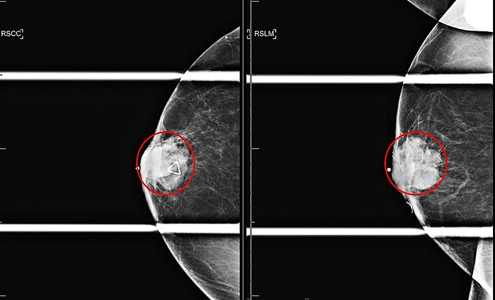 Right-breast-diagnostic-mammogram-spot-compression-CC-and-LM-Views