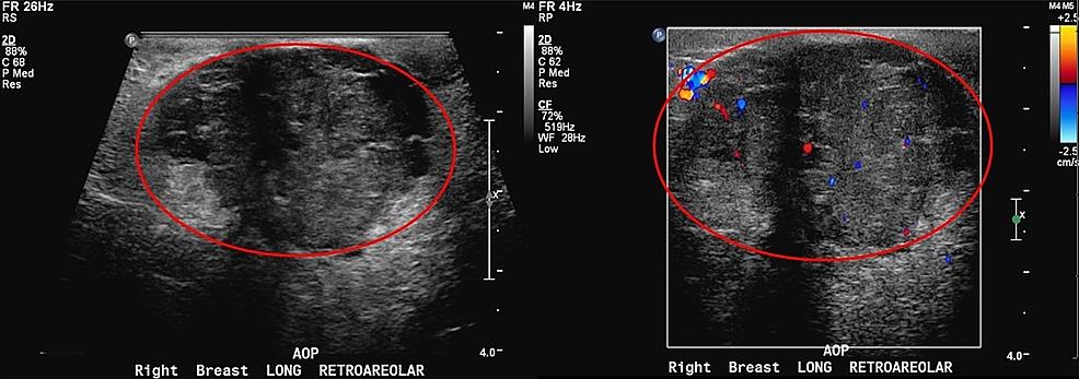 Right-breast-diagnostic-ultrasound