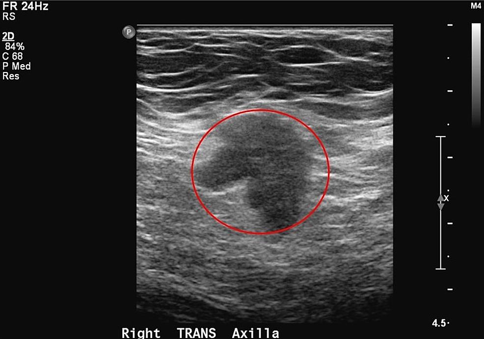 Right-axilla-diagnostic-ultrasound