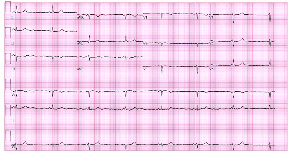 Case-2-EKG-on-admission-demonstrating-marked-sinus-bradycardia