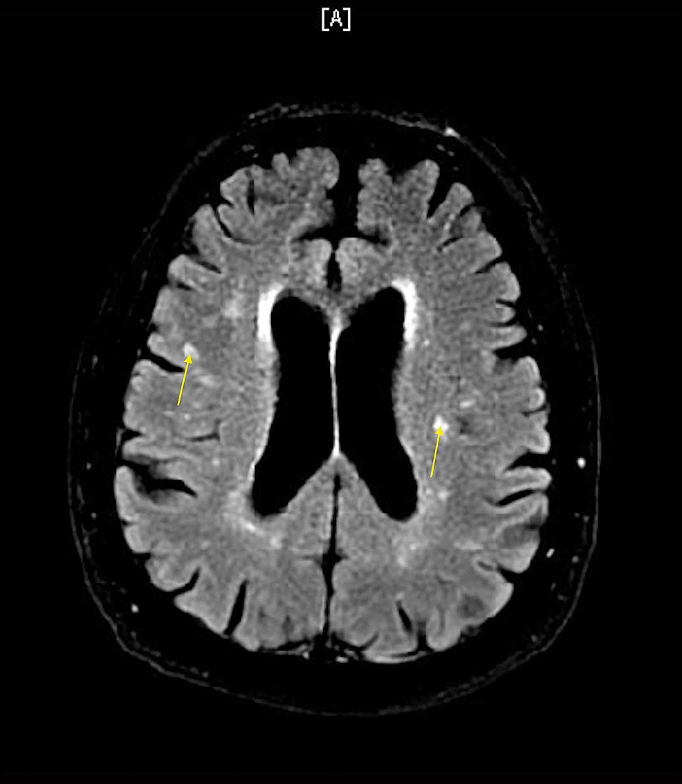 MRI-brain-without-contrast-showing-white-matter-hyperintensities,-consistent-with-chronic-white-matter-ischemic-changes