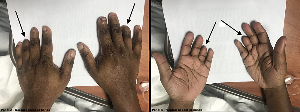 Photos-of-the-hands