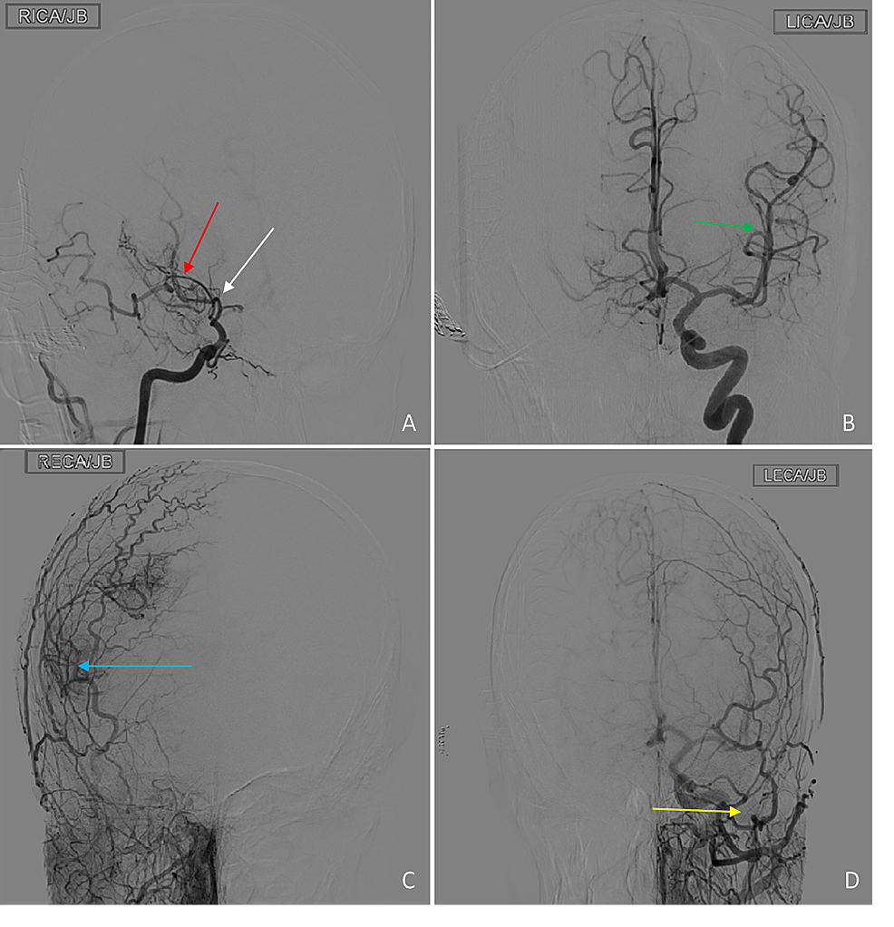 Catheter-angiogram-in-coronal-plane-after-injection-of-135-ml-of-Omnipaque-300