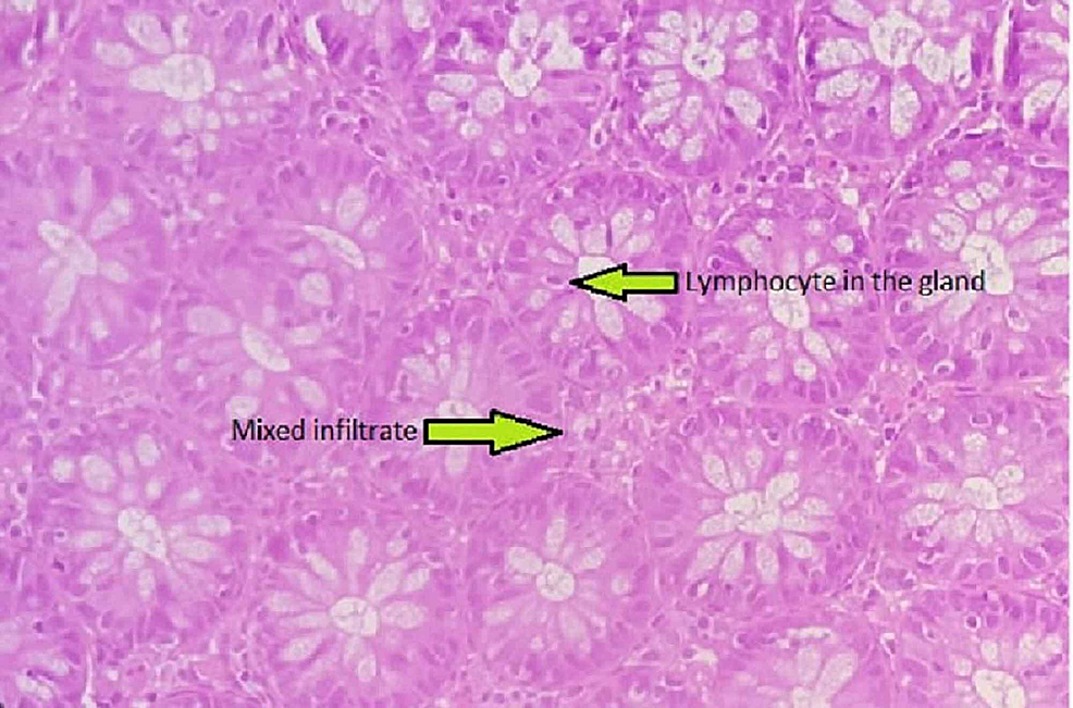 Colonic-epithelium-with-mixed-infiltrate-in-lamina-propria-and-glands-are-infiltrated-by-mature-lymphocyte.