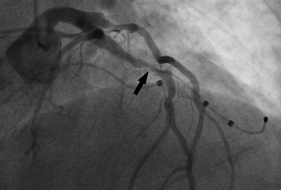Severe-proximal-left-anterior-descending-artery-stenosis-with-an-acute,-ulcerated-appearance.