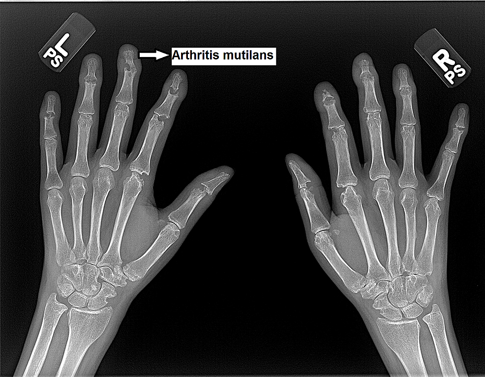 X-rays-of-bilateral-hands-demonstrates-arthritis-mutilans-mainly-affecting-bilateral-distal-interphalangeal-joints
