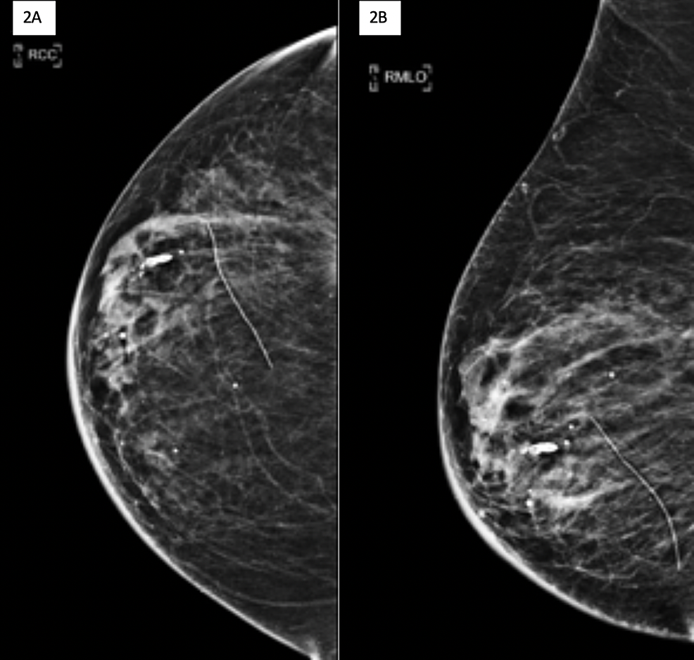 Cureus Hematoma Mimicking Breast Cancer On Ct Scan And Breast