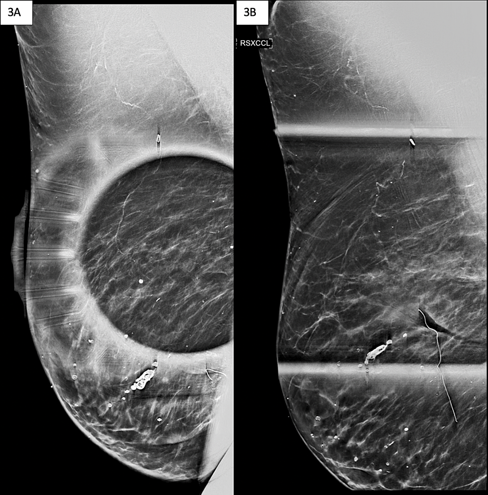 Images-of-diagnostic-mammogram