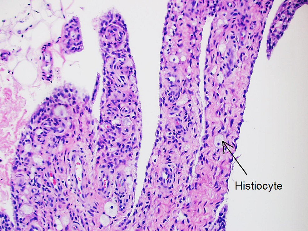 Histologic-appearance-of-the-synovium-showing-histiocytes