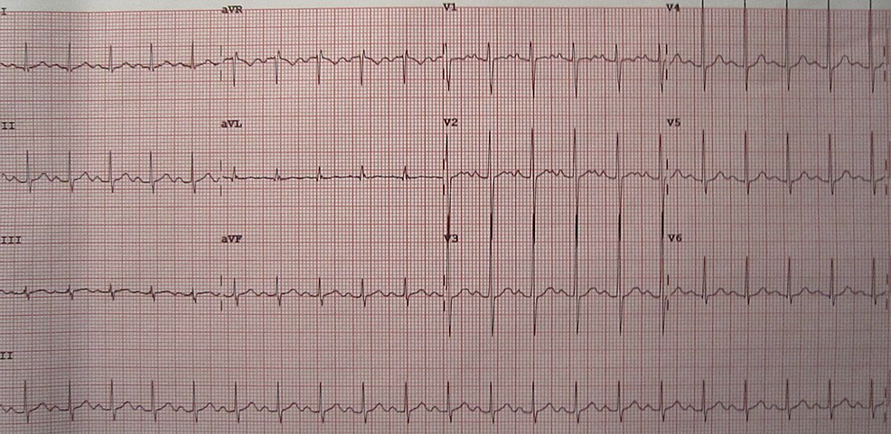 Electrocardiogram-demonstrating-sinus-tachycardia.