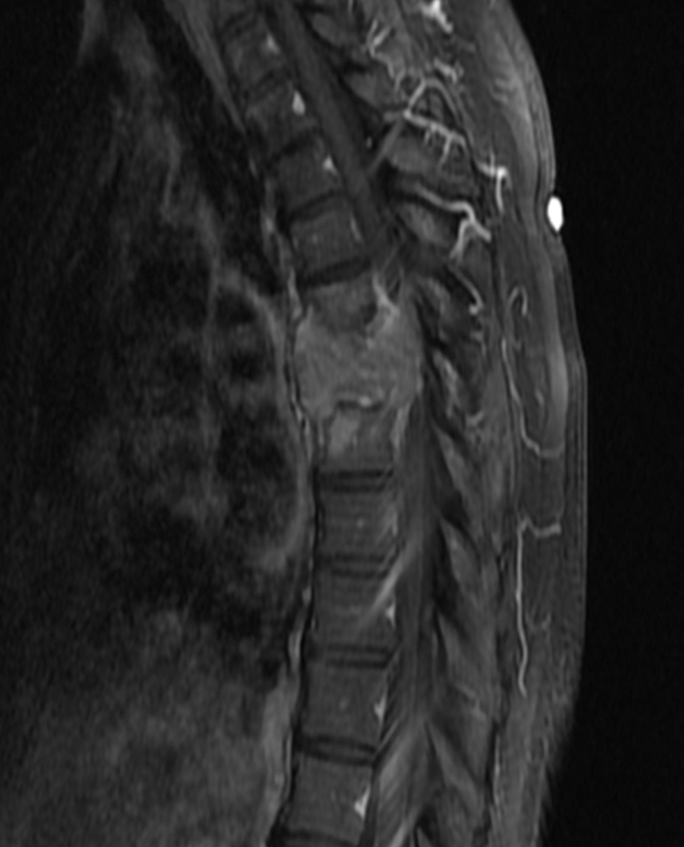 Sagittal-T1-weighted-MRI-of-thoracic-spine-with-contrast