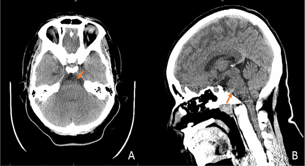 CT-head-without-contrast-at-admission