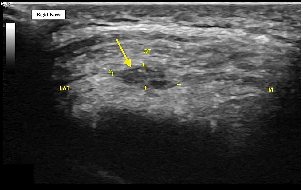 Short-axis-ultrasound-image-of-the-right-knee-at-initial-visit-demonstrating-evidence-of-quadriceps-tendinopathy,-micro-tears,-calcific-enthesopathy,-and-intrasubstance-hypoechogenicity-(yellow-arrow)