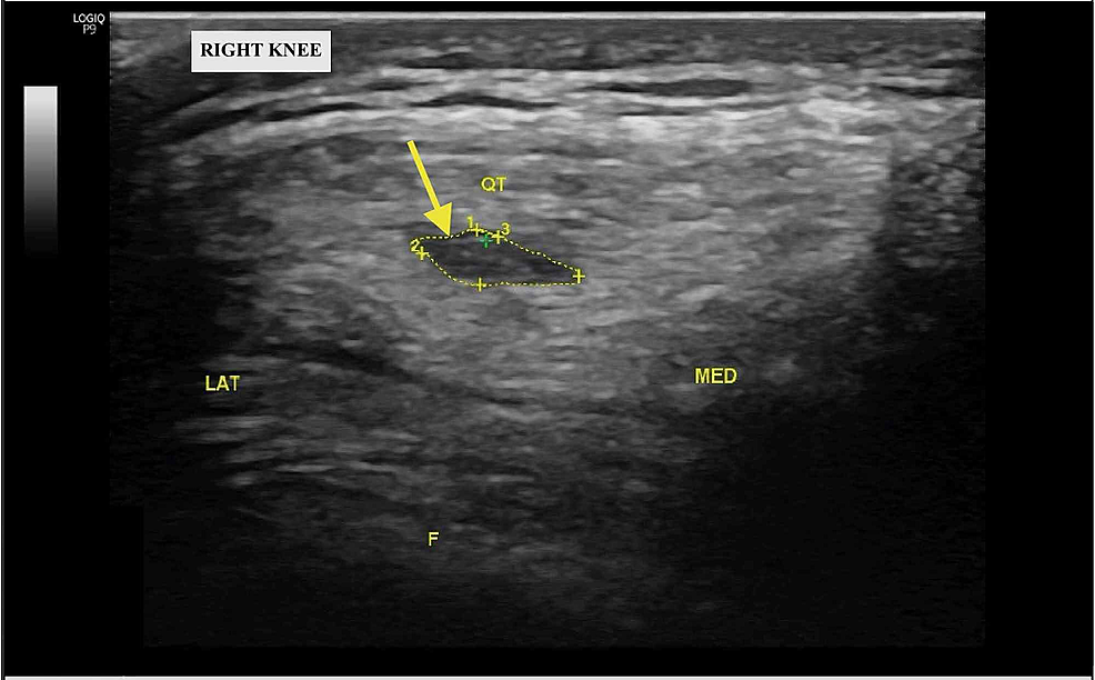 Short-axis-ultrasound-image-of-the-right-knee-at-three-month-follow-up-demonstrating-hypoechogenicity-within-the-right-quadriceps-tendon-(yellow-arrow)