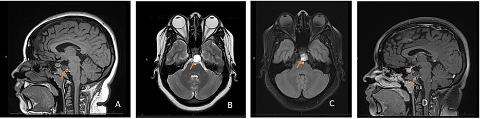 Brain-MRI-with-and-without-contrast-