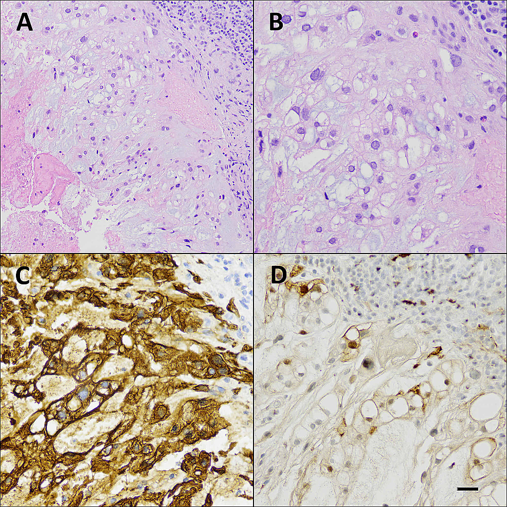 Histopathology-of-the-retroclival-mass
