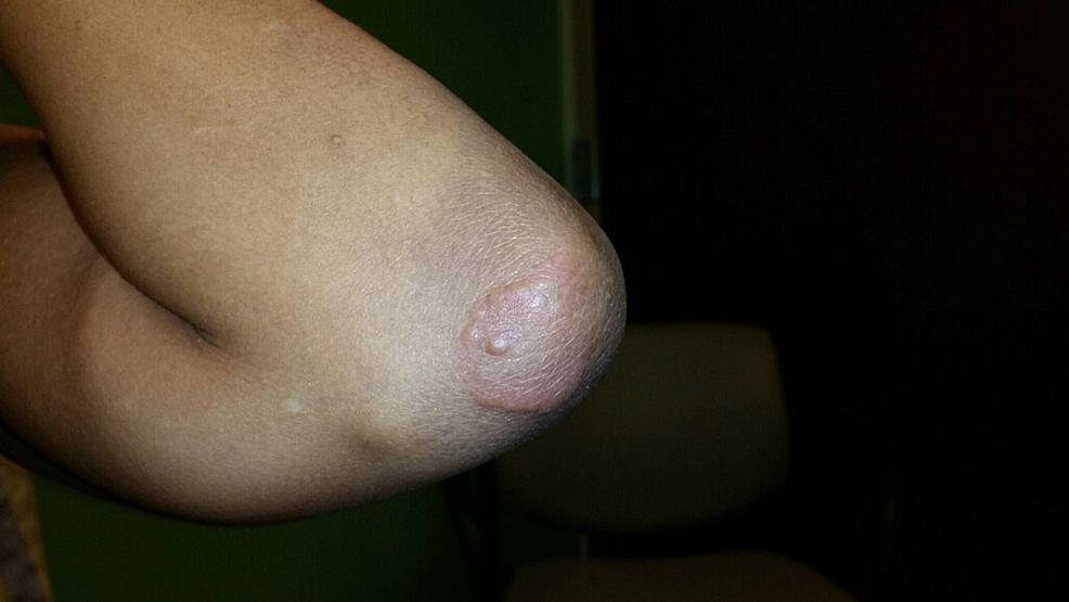 Papulonodular-skin-lesion-on-left-elbow