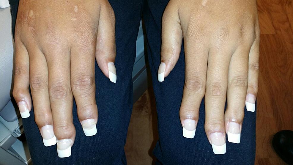 Tenosynovitis-of-bilateral-hand-joints