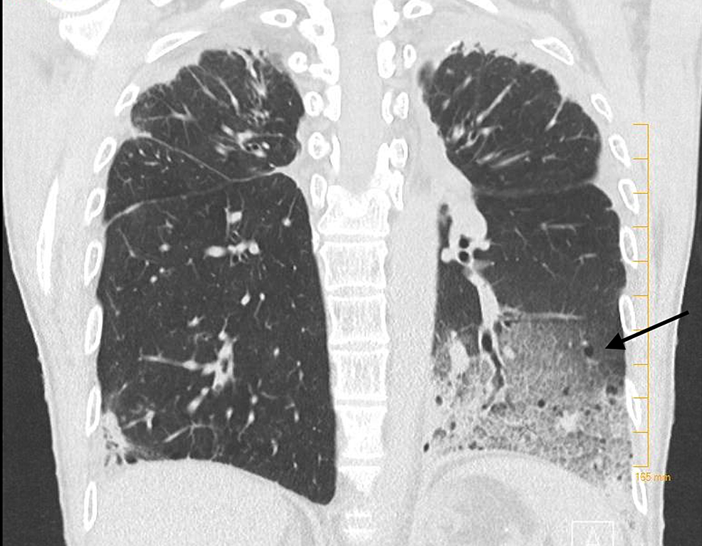 CT-chest-showing-multiple-cysts-and-left-basilar-consolidation-with-ground-glass-opacities.