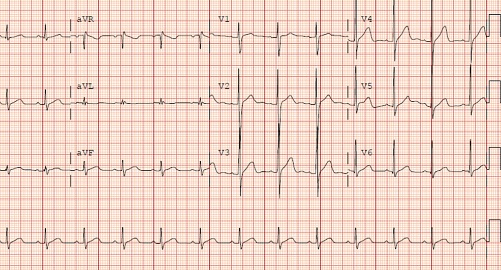 Electrocardiogram-revealing-normal-sinus-rhythm,-no-signs-of-ischemia,-and-normal-intervals.