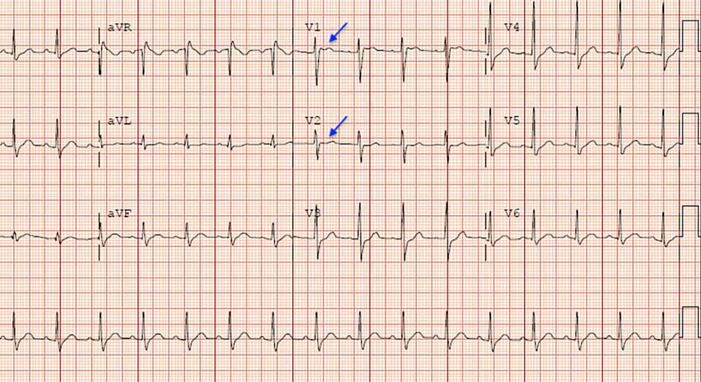 Electrocardiogram-revealing-type-2-Brugada-pattern-showing-saddleback-ST-pattern-in-V1-V2-(arrows).