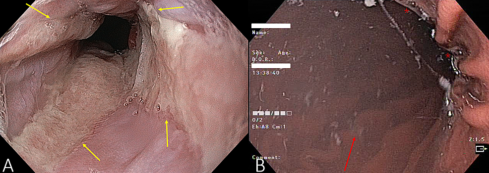 Endoscopy-of-the-distal-esophagus-(A)-showing-severe-reflux-with-circumferential-ulcerations-present-in-four-quadrants-(yellow-arrows)-and-the-stomach-(B)-showing-increased-secretions-(marked-with-red-stars)-and-hypertrophic-gastric-folds-(red-arrow-showing-one-well-delineated-fold-in-the-background).