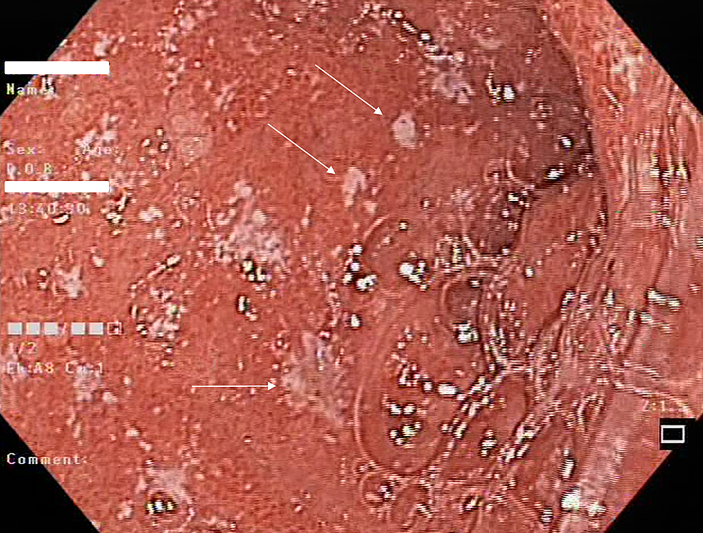 Endoscopy-of-the-duodenal-bulb-showing-dozens-of-ulcerations-(arrows)-approximately-several-millimeters-in-size.