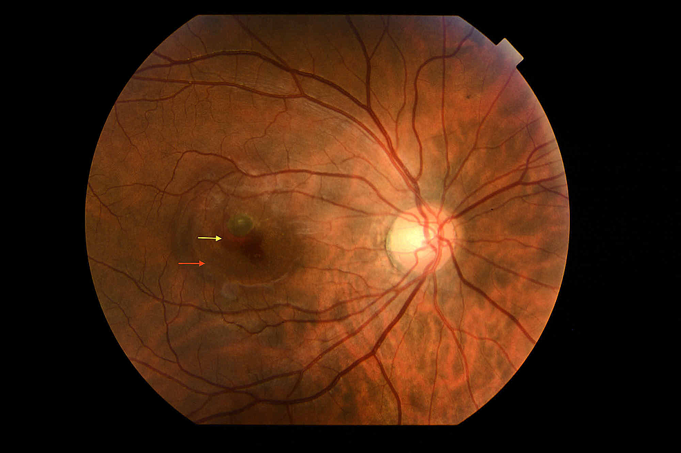 Fundus-photography-showing-sub-retinal-haemorrhage-(yellow-arrow)-and-edema-(red-arrow)