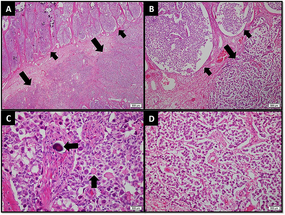 (A)-Low-power-and-(B)-medium-power-view-of-tumor-exhibiting-gonadoblastoma-arranged-in-large-nests-and-lobules-(smaller-arrows)-and-dysgerminoma-arranged-in-sheets-(larger-arrows).-(C)-High-power-view-of-gonadoblastoma-showing-cuboidal-sex-cord-type-cells-forming-acini-around-larger-polygonal-primitive-germ-cells.-Calcification-(horizontal-arrow)-and-Call-Exner-bodies-(vertical-arrow)-are-also-evident.-(D)-High-power-view-of-dysgerminoma-arranged-in-sheets-with-thin-fibrovascular-septae