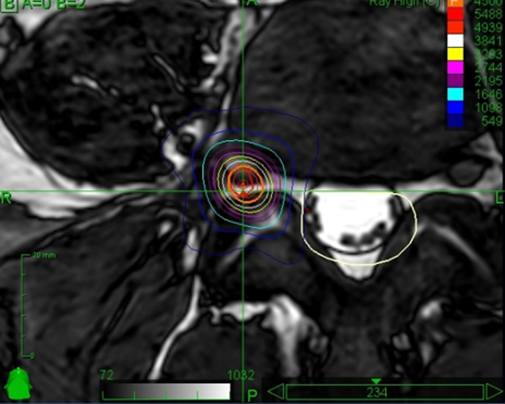 Axial-screenshot-of-the-treatment-planning-delivering-stereotactic-irradiation-to-the-right-L4-intraforaminal-root