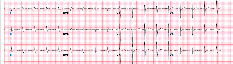 Electrocardiogram-shows-sinus-tachycardia