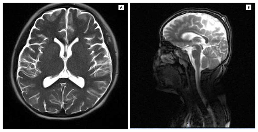 Magnetic-Resonance-Imaging-of-the-head-depicting-normal-findings-with-no-acute-intracranial-abnormalities-(A:-Axial-view;-B:-Sagittal-view)-