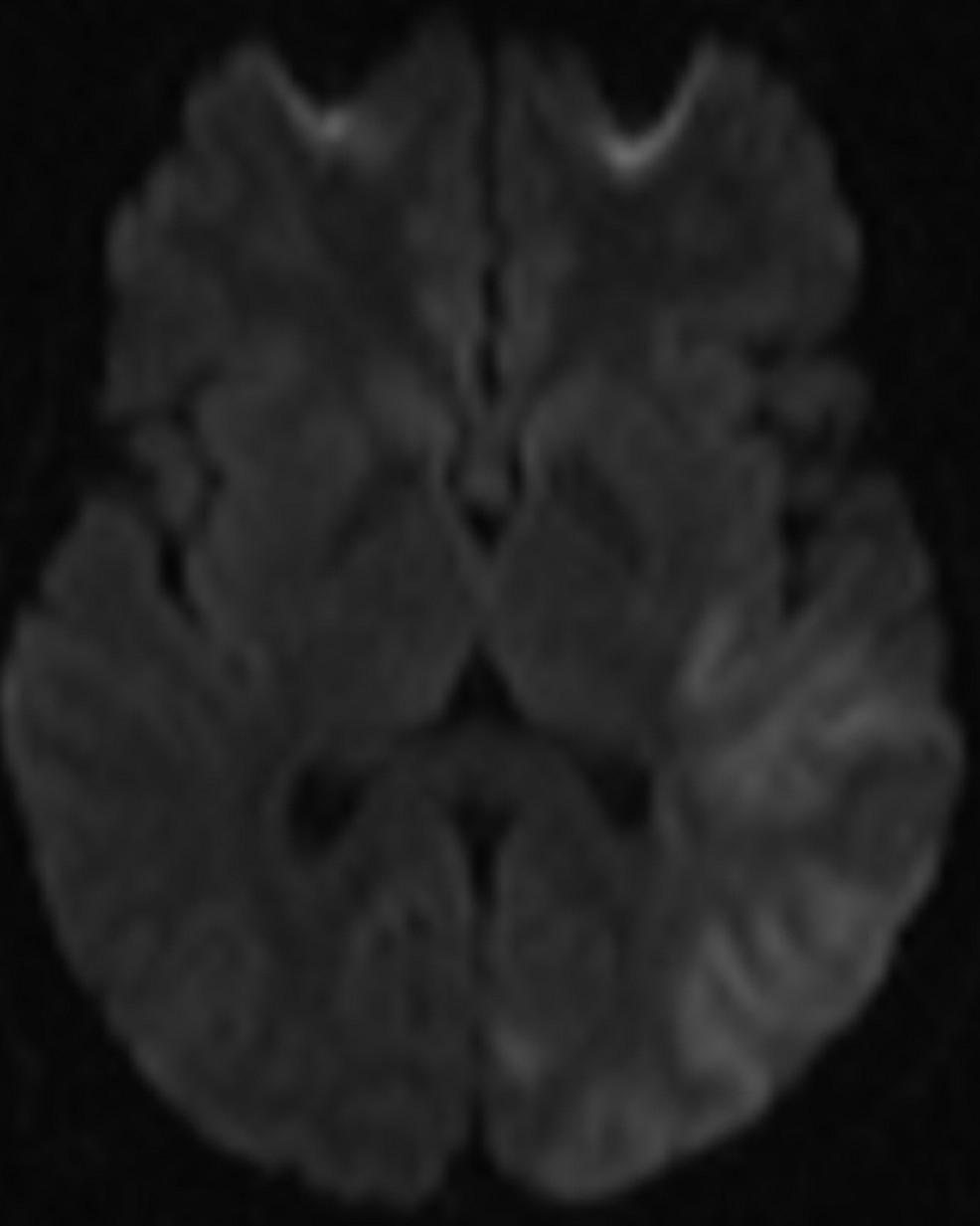 Diffusion-MRI-of-the-brain